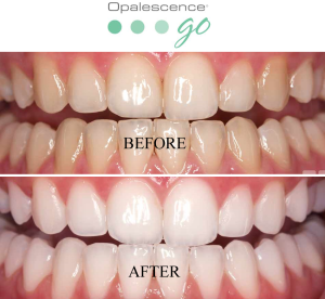 Before and after with opalescense